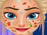 Cuidar do rosto da Elsa