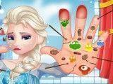 Elsa cuidar das mãos feridas