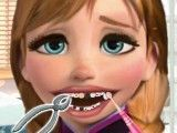 Dentista da Frozen Anna