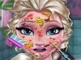 Médico do rosto da Elsa