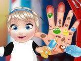 Bebê Elsa machucados da mão