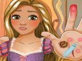 Rapunzel ferimentos da mão