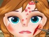 Cuidar do rosto da Anna