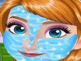 Princesa Anna limpeza de pele