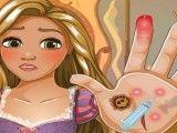Mãos machucadas da Rapunzel