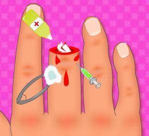 Cirurgia do dedo da mão
