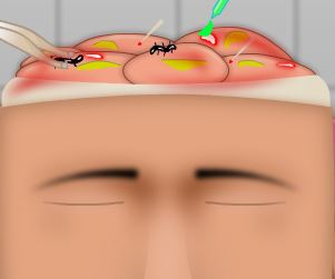 Cirurgia na cabeça