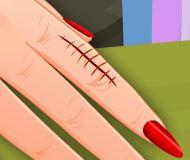 Cuidar da mão machucada