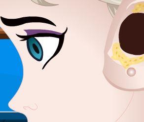 Cuidar do ouvido da Elsa