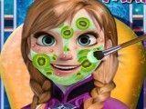 Limpeza de pele da Anna Frozen